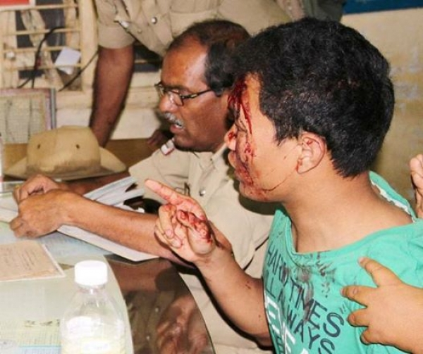 DYFI strongly condemns the cowardly attack on the student from Manipur in Bangalore